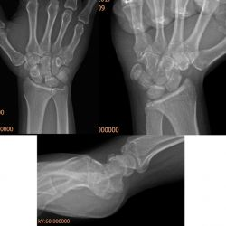 Case 10 - TFCC Injury + Scapholunate Ligament Injury