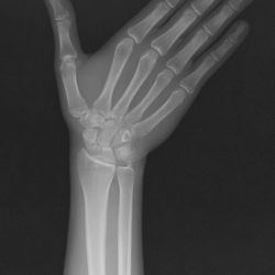 Case 13 - Scaphoid Fracture
